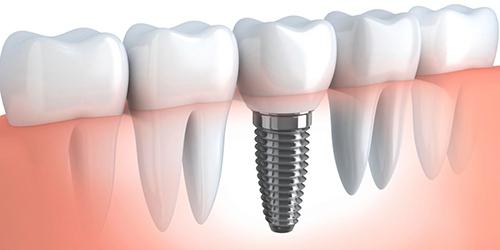 implantaciya-zubov1