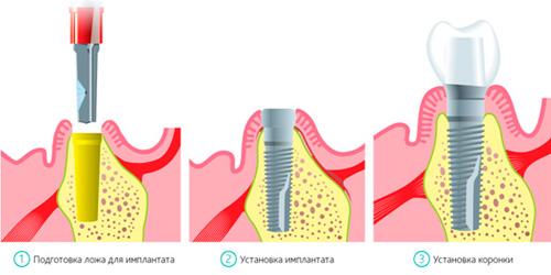 implantaciya-zubov2