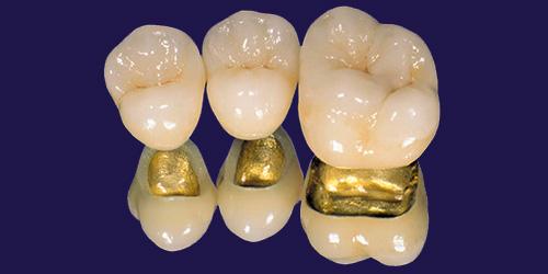 Металлокерамика на золотом каркасе
