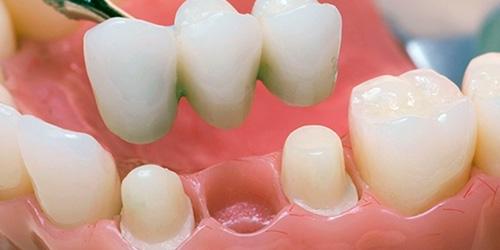 Протезирование зубов - Excelline